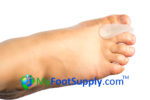 Molded Gel Toe Separators, Custom Fit Gel Toe Separators, Gel Toe Separators,